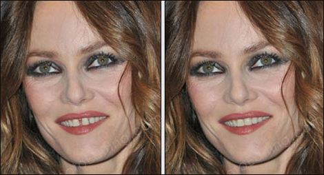 Vanessa Paradis Teeth Fixed - Vanessa Paradis Net Worth